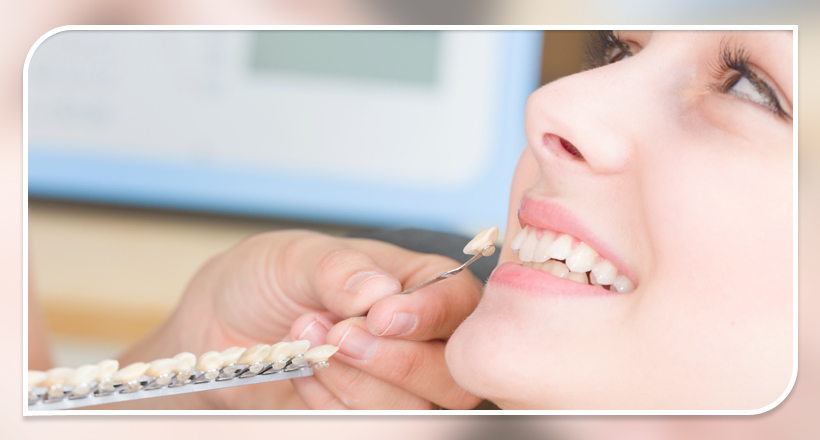 https://www.sw19confidental.co.uk/wp-content/uploads/2021/08/1469690862perfect-candidate-for-porcelain-veneers.jpg