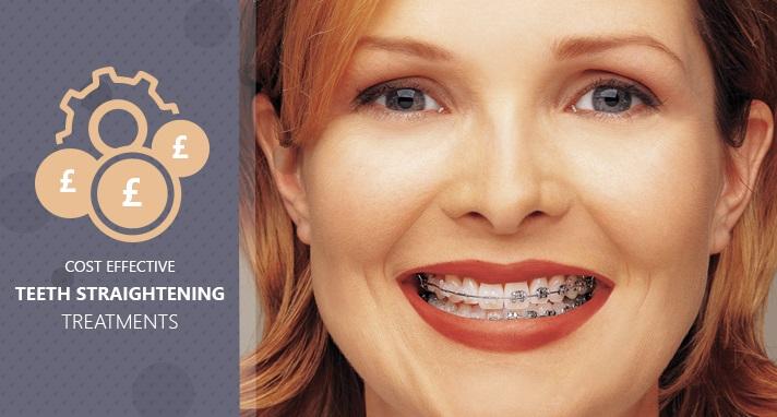 https://www.sw19confidental.co.uk/wp-content/uploads/2021/08/1472477560cost-effective-teeth-straightening-treatments.jpg