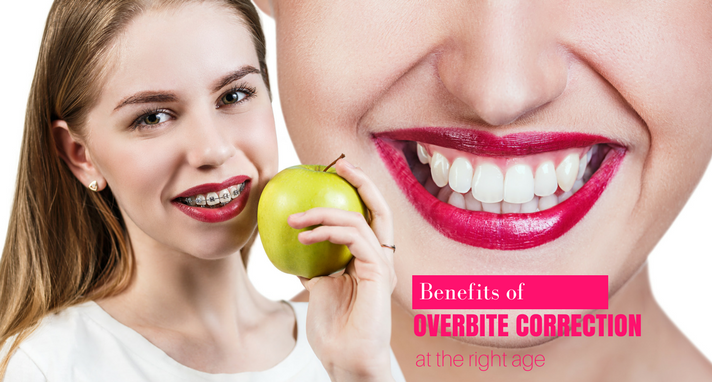 https://www.sw19confidental.co.uk/wp-content/uploads/2021/08/1511946549benefits-of-overbite-correction-at-the-right-age.png