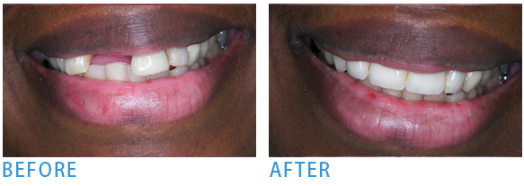 Dental Implants three crowns to close the gap - Before after