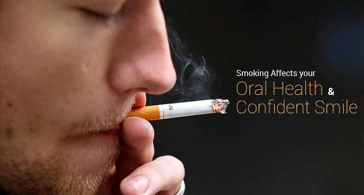 https://www.sw19confidental.co.uk/wp-content/uploads/2021/08/How-Smoking-Affects-your-Oral-Health-and-Confident-Smile.jpg