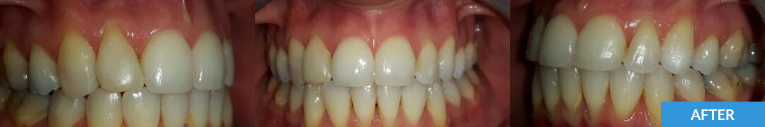 Overlycrowded After 1 - Confidental Dental Clinic Smile Gallery