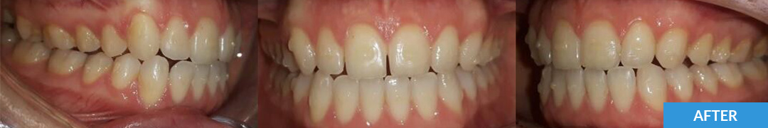 Overlycrowded After 10 - Confidental Dental Clinic Smile Gallery