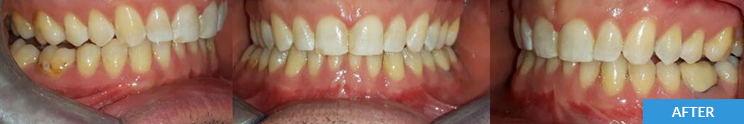 Overlycrowded After 11 - Confidental Dental Clinic Smile Gallery