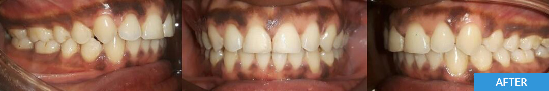 Overlycrowded After 12 - Confidental Dental Clinic Smile Gallery