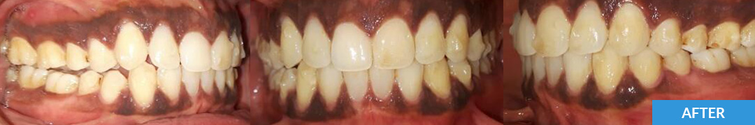 Overlycrowded After 13 - Confidental Dental Clinic Smile Gallery