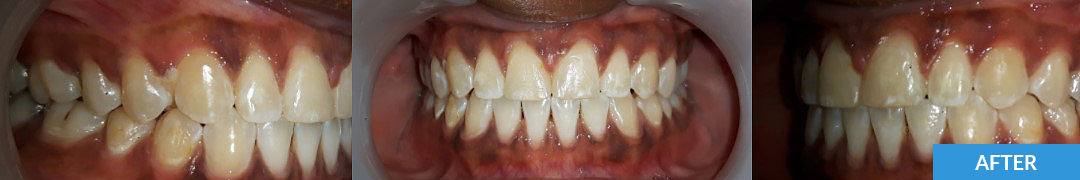 Overlycrowded After 14 - Confidental Dental Clinic Smile Gallery