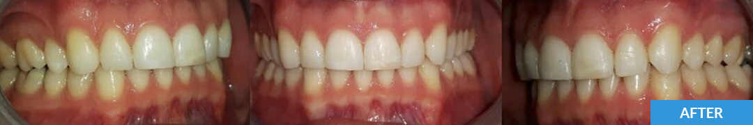 Overlycrowded After 15 - Confidental Dental Clinic Smile Gallery
