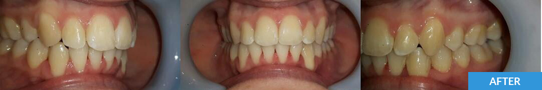 Overlycrowded After 16 - Confidental Dental Clinic Smile Gallery