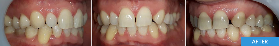 Overlycrowded After 17 - Confidental Dental Clinic Smile Gallery