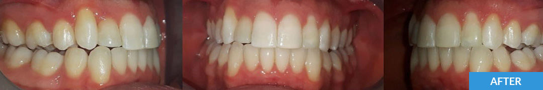 Overlycrowded After 2 - Confidental Dental Clinic Smile Gallery