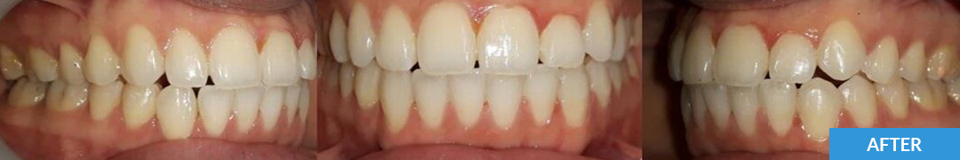 Overlycrowded After 3 - Confidental Dental Clinic Smile Gallery