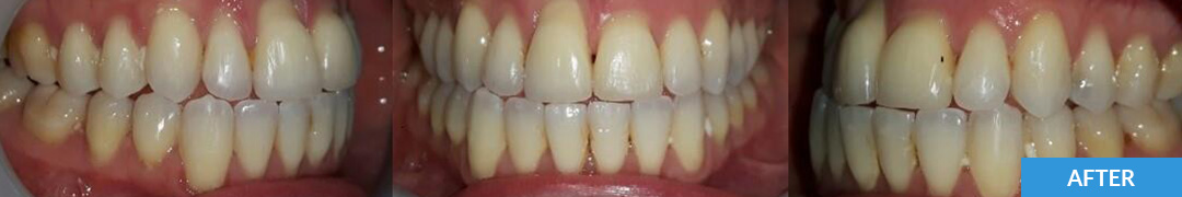 Overlycrowded After 4 - Confidental Dental Clinic Smile Gallery