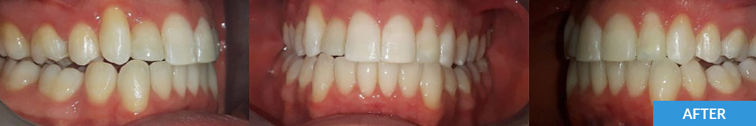 Overlycrowded After 5 - Confidental Dental Clinic Smile Gallery