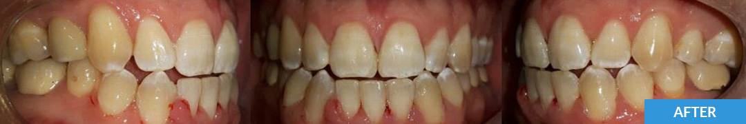 Overlycrowded After 6 - Confidental Dental Clinic Smile Gallery
