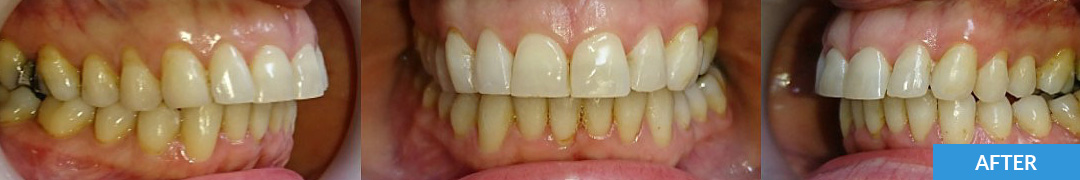 Overlycrowded After 7 - Confidental Dental Clinic Smile Gallery