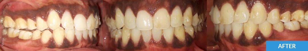 Overlycrowded After 9 - Confidental Dental Clinic Smile Gallery