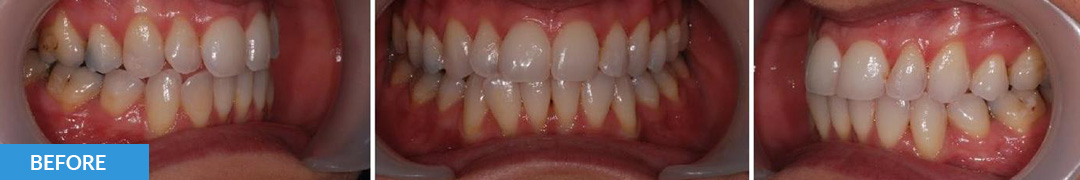 Overlycrowded Before 1 - Confidental Dental Clinic Smile Gallery
