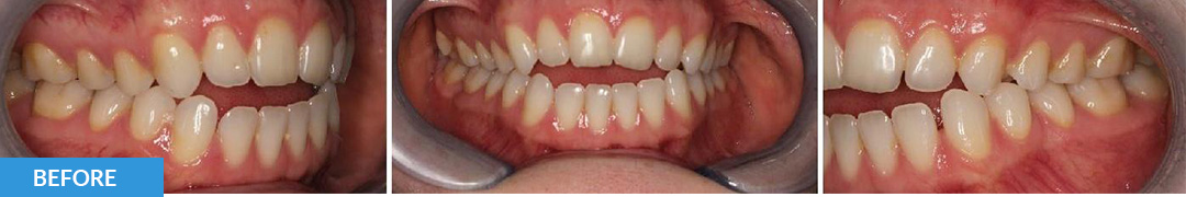 Overlycrowded Before 10 - Confidental Dental Clinic Smile Gallery
