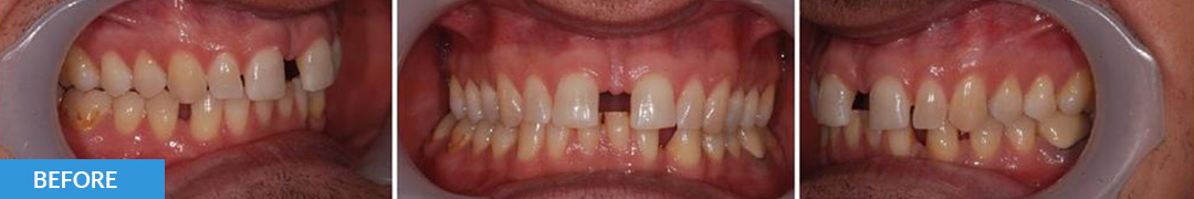 Overlycrowded Before 11 - Confidental Dental Clinic Smile Gallery