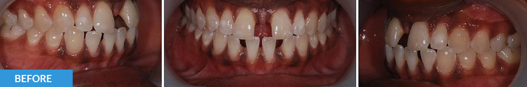 Overlycrowded Before 14 - Confidental Dental Clinic Smile Gallery
