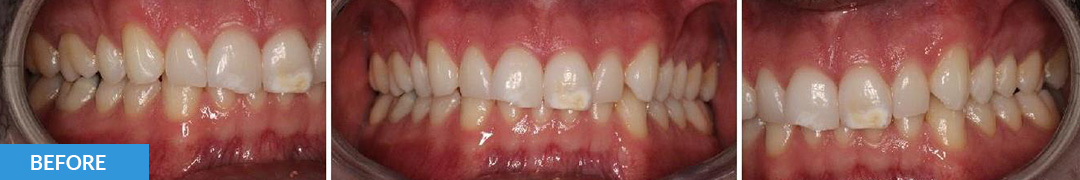 Overlycrowded Before 15 - Confidental Dental Clinic Smile Gallery