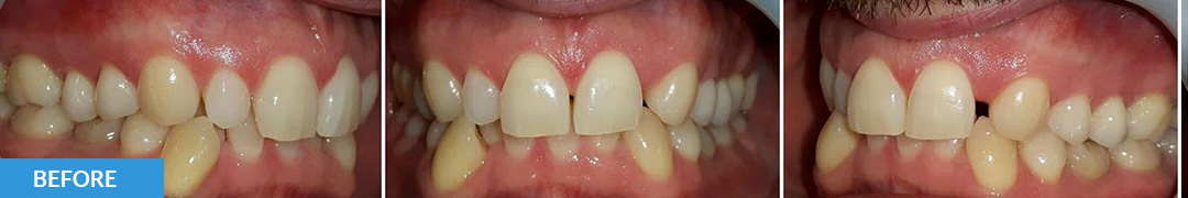 Overlycrowded Before 17 - Confidental Dental Clinic Smile Gallery