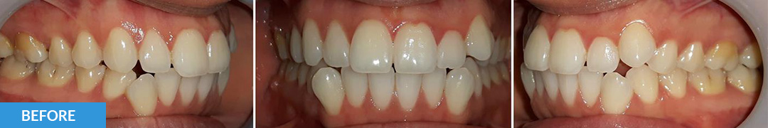 Overlycrowded Before 3 - Confidental Dental Clinic Smile Gallery