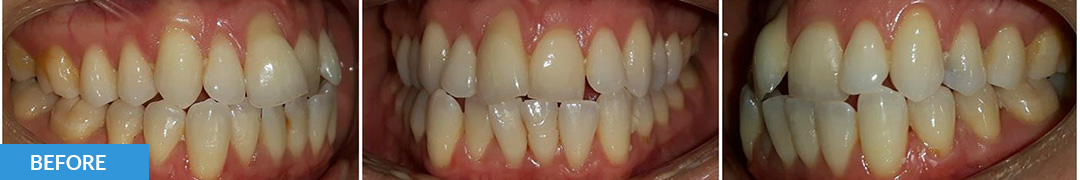 Overlycrowded Before 4 - Confidental Dental Clinic Smile Gallery