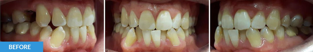 Overlycrowded Before 6 - Confidental Dental Clinic Smile Gallery