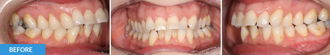 Overlycrowded Before 7 - Confidental Dental Clinic Smile Gallery