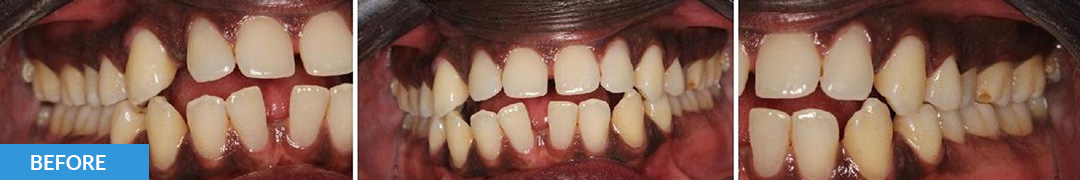 Overlycrowded Before 9 - Confidental Dental Clinic Smile Gallery