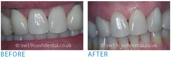 Teeth Whitening in Wimbledon