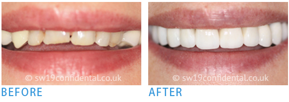 Home and Zoom office teeth whitening - Before after 4