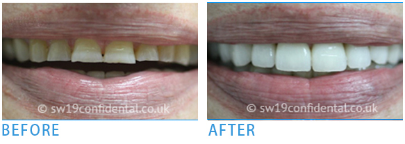 Home and Zoom office teeth whitening - Before after