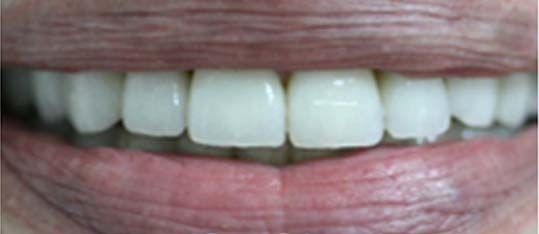 Invisalign after 3