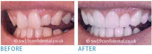 Pure Porcelain Crowns - Before after 2
