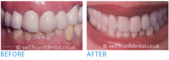 Pure Porcelain Crowns - Before after 3