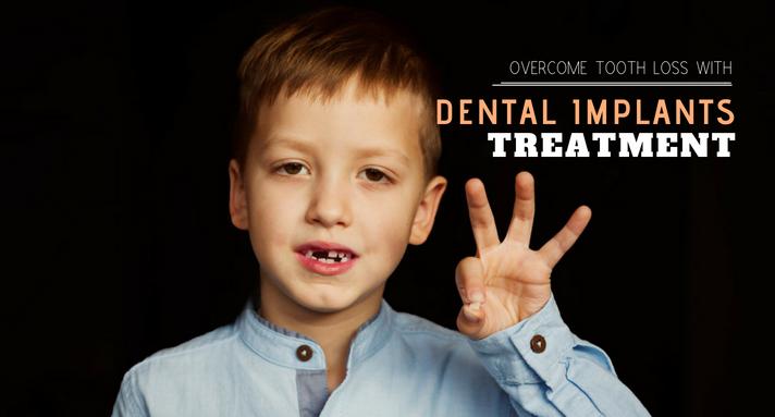 https://www.sw19confidental.co.uk/wp-content/uploads/2021/08/dental-implants-treatment.png