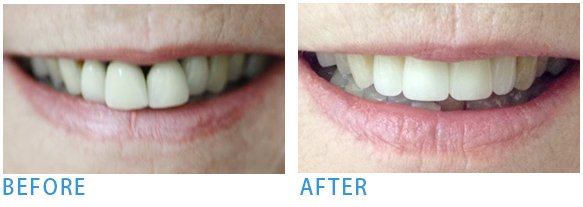 4 Pure Porcelain Crowns On Front Teeth - Before after