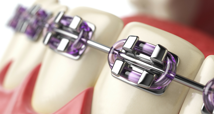https://www.sw19confidental.co.uk/wp-content/uploads/2021/08/orthodontist-discusses-the-different-kinds-of-affordable-braces.png