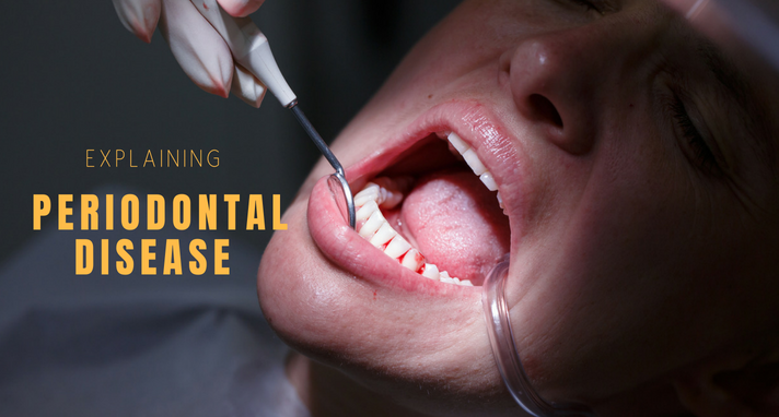 https://www.sw19confidental.co.uk/wp-content/uploads/2021/08/periodontal-disease.png