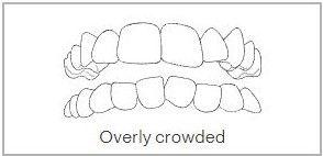 Overly Crowded Teeth in Wimbledon