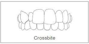 Crossbite Teeth Treatment in Wimbledon