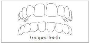 Gapped Teeth Treatment in Wimbledon