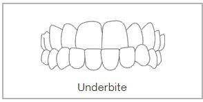 Underbite Teeth Treatment in Wimbledon