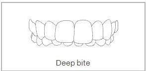 Openbite Teeth Treatment in Wimbledon