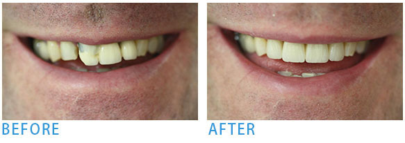Smile Makeover - Before after