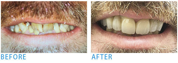 Smile Makeover - Before after2