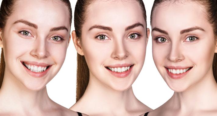 https://www.sw19confidental.co.uk/wp-content/uploads/2021/08/smile-makeover-why-should-i-go-for-it.jpg